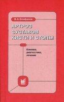 Епифанов В.А. - Артроз суставов кисти и стопы